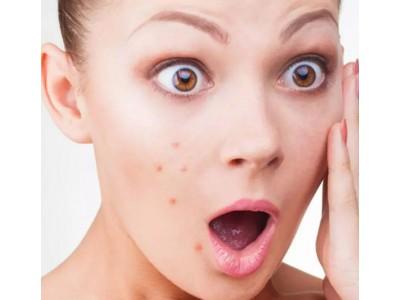 Плохо ли влияет основа под макияж на угревую сыпь?